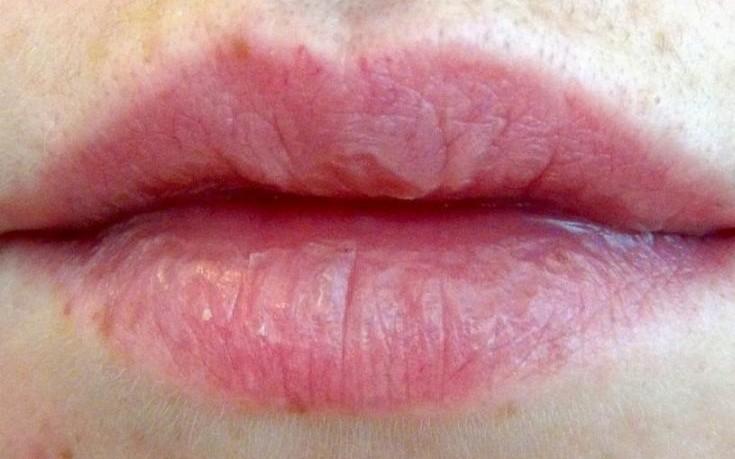 dry_lips-735x459