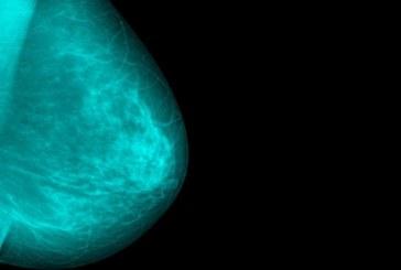Καρκίνος μαστού: 4 αλλαγές στον τρόπο ζωής για να μειώσετε τον κίνδυνο